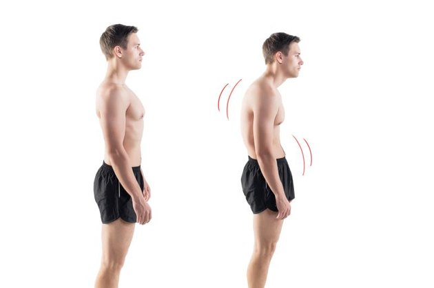 Man with impaired posture position defect scoliosis and ideal bearing.
