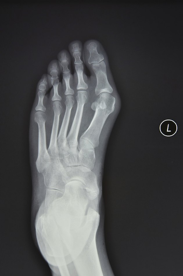 Left foot X-ray