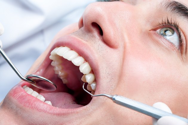 Young man whitening teeth at dentist.