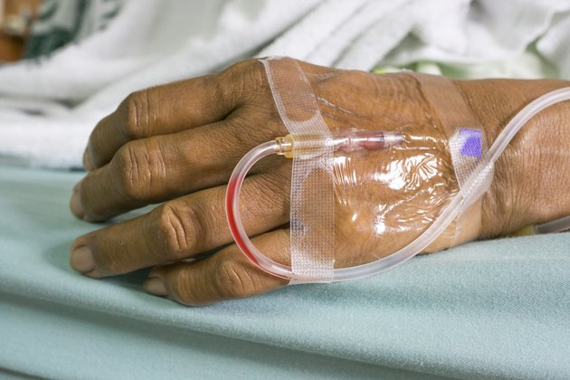 Hand of a patient with saline intravenous (IV) drip