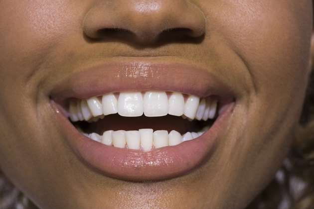 Close-up of smiling mouth and teeth