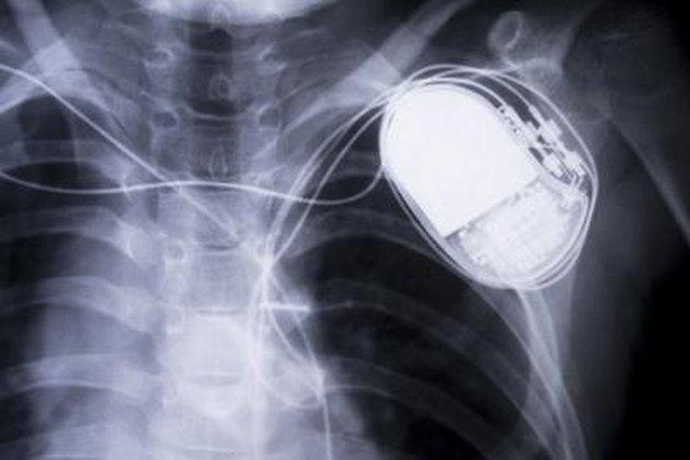 x-ray chestx-ray chest