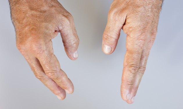 Picture of swollen male hand