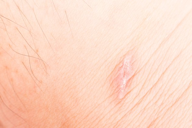 Close up on scar on leg, upon recovery