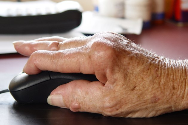 Arthritic hand using a computer mouse.