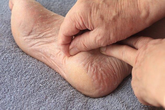 Man peeling dry skin from his foot