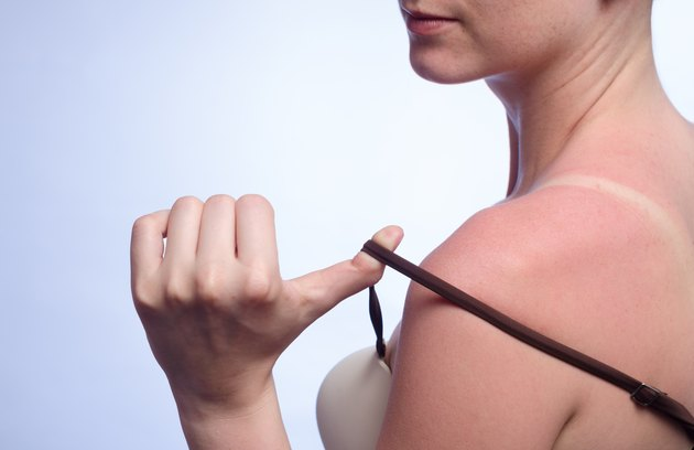 tanned skin in the sun