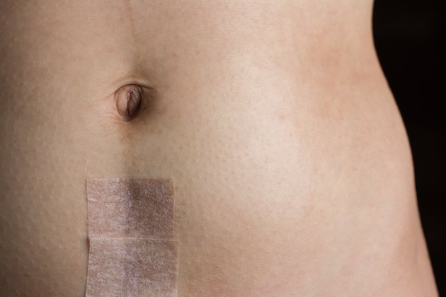 Stomach with Recovering Cesarean Section Scar