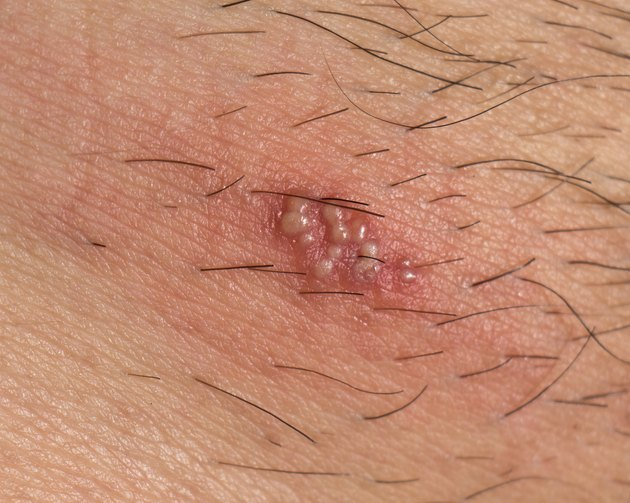 Herpes on the human body