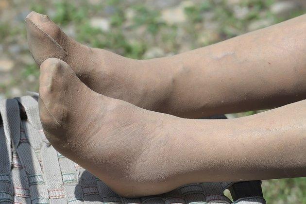 swollen feet close up