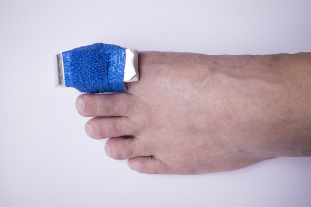 Phalanx fracture with splint and elastic gauze