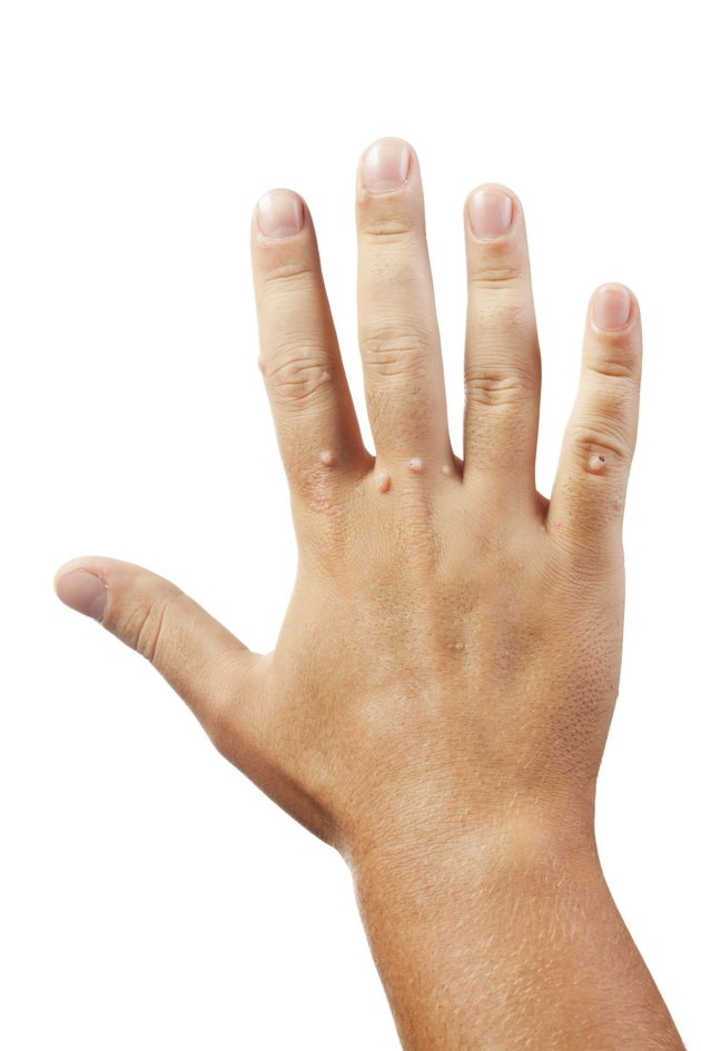 Hand with warts on white background