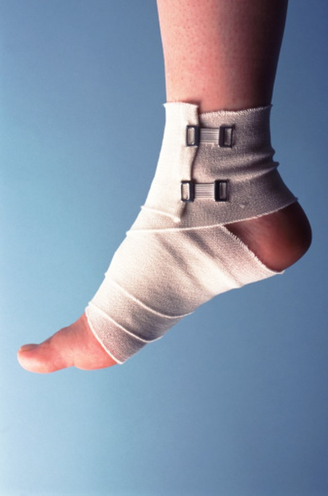 How To Care For A Sprained Foot Livestrong Com
