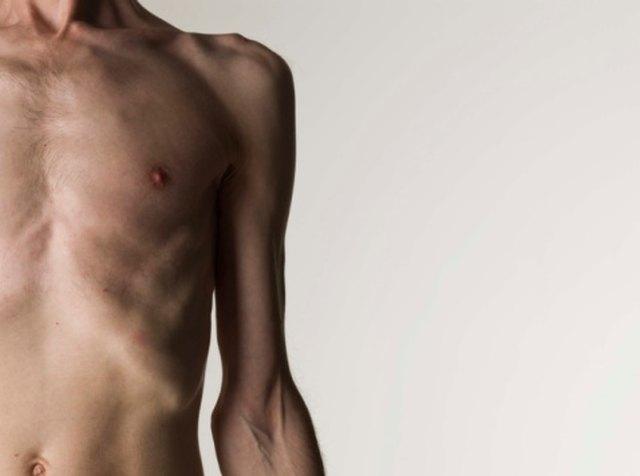Symptoms of Protein Malnutrition