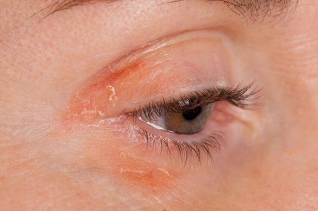 The Underlying Reasons for Skin Problems With Sinusitis