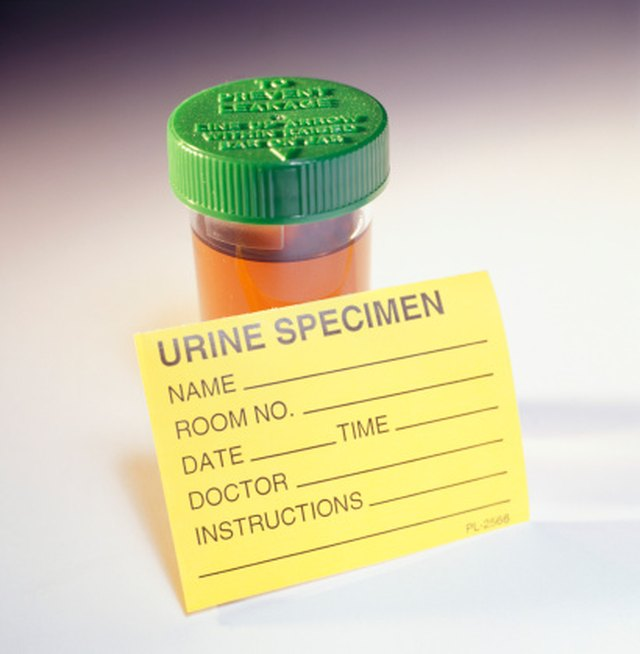 How to Reduce Acid in Urine