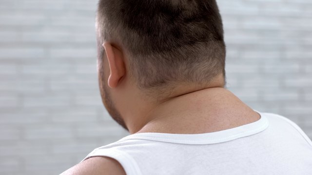 Carolina Physical Therapy >> What Are the Causes of Excessive Fat Around the Neck? | Livestrong.com