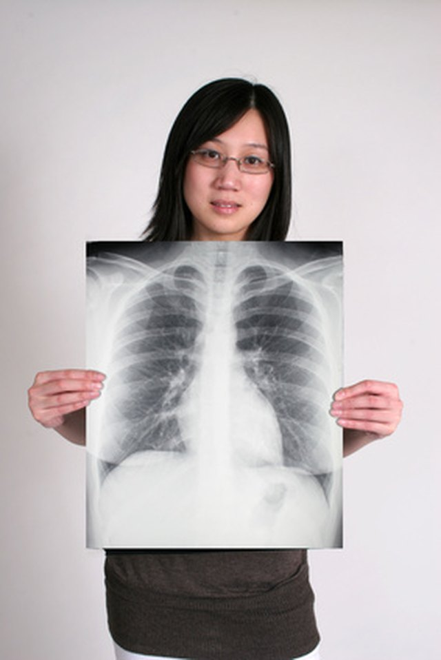 What Causes Scarring of the Lungs?