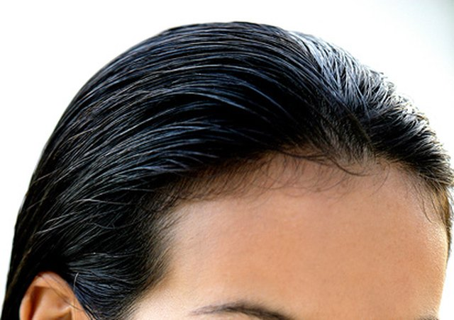How to Regrow Hair on a Receding Hairline