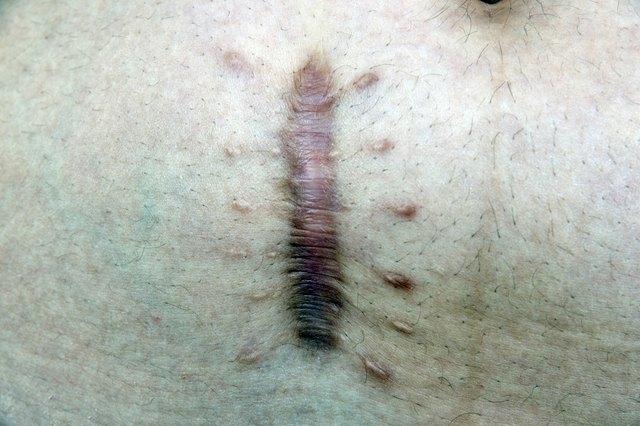 skin scar