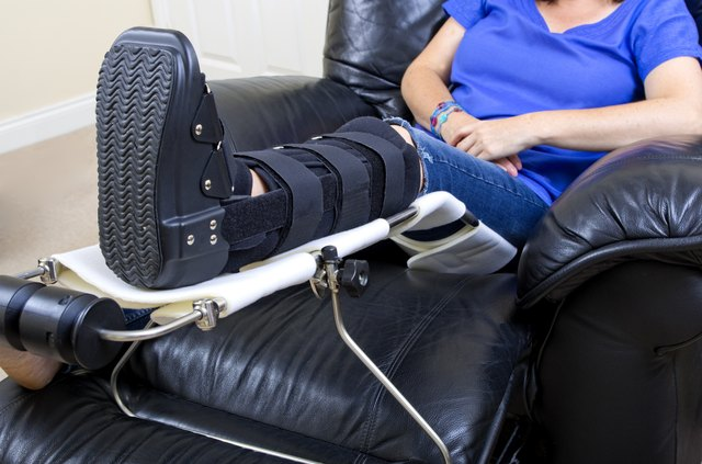 Lady with Fractured Leg