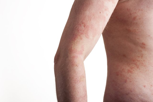 Foods to Avoid When You Have Atopic Dermatitis
