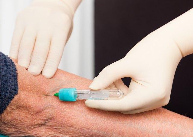 Blood Tests for Elderly