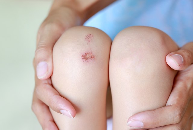 Lesions of the knee.