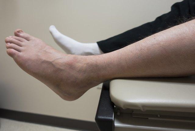 Broken Foot, Sprained Ankle, Fractured Bone in Doctor's Exam Room