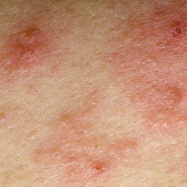Diseases that Cause Eczema