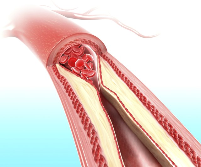Athersclerosis in artery caused by cholesterol plaque