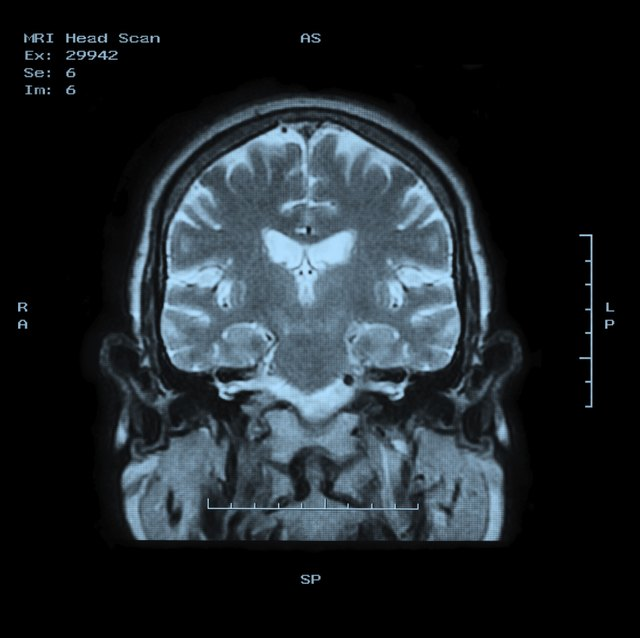 Infant Development of the Blood-Brain Barrier