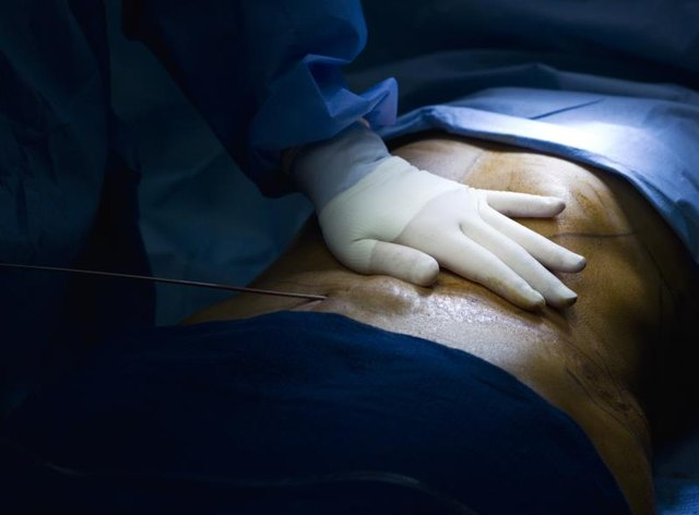 The suction tube goes deep inside the patient skin absorbing the fat cells.