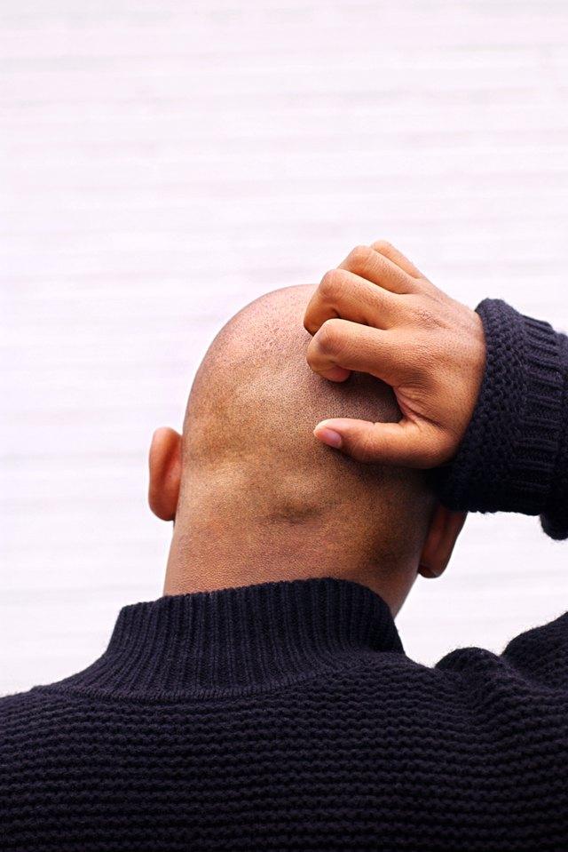 Bald man scratching head