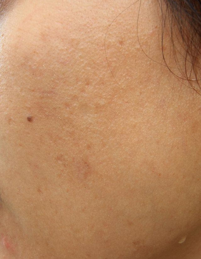Woman with oily skin and acne scars