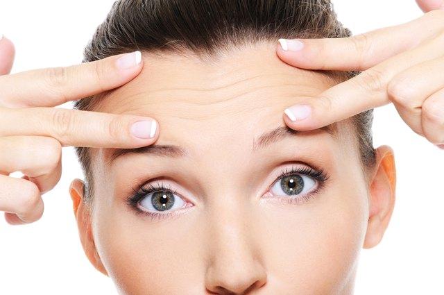 wrinkles on forehead