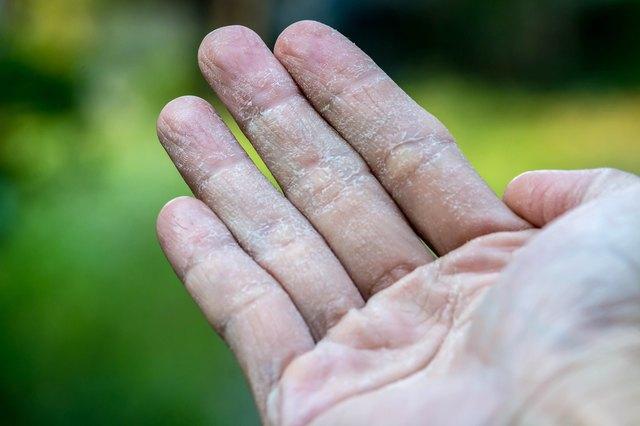 Male Hand with Ecxema