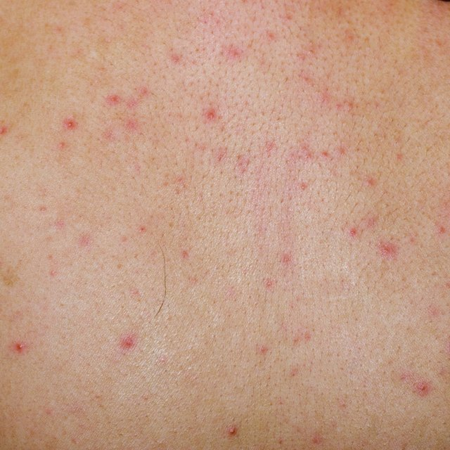 allergic rash dermatitis skin