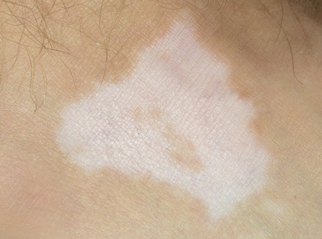 Vitiligo in tanned skin