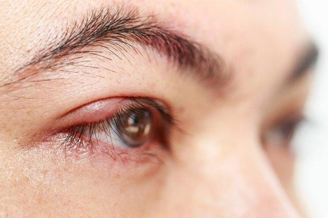 """Right upper eye lid abscess """"stye or hordeolum"""""""
