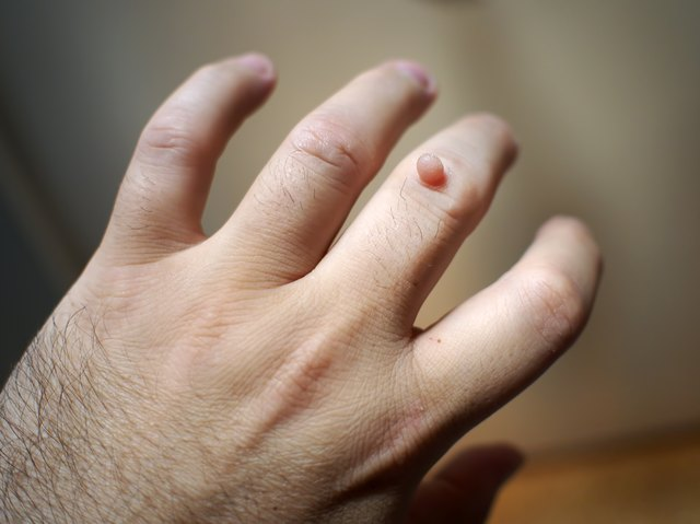 Wart on the hand