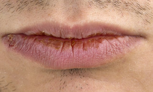 Home Remedy to Prevent a Mouth Infection