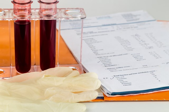 Blood sample in test tubes with health analysis screening report