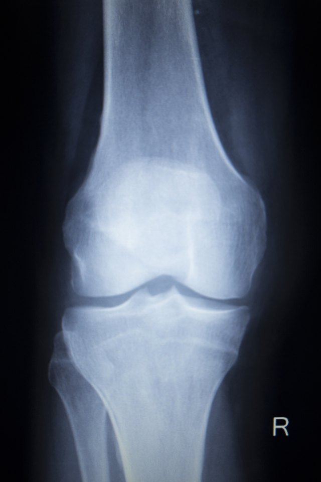 Rehabilitation From Tibial Plateau Knee Surgery