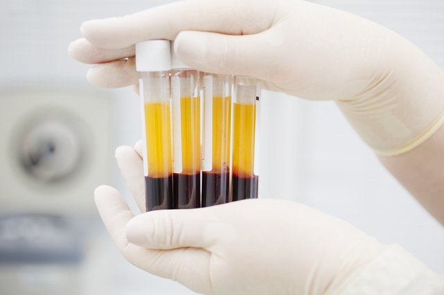 Blood Thinners & Cholesterol Medications