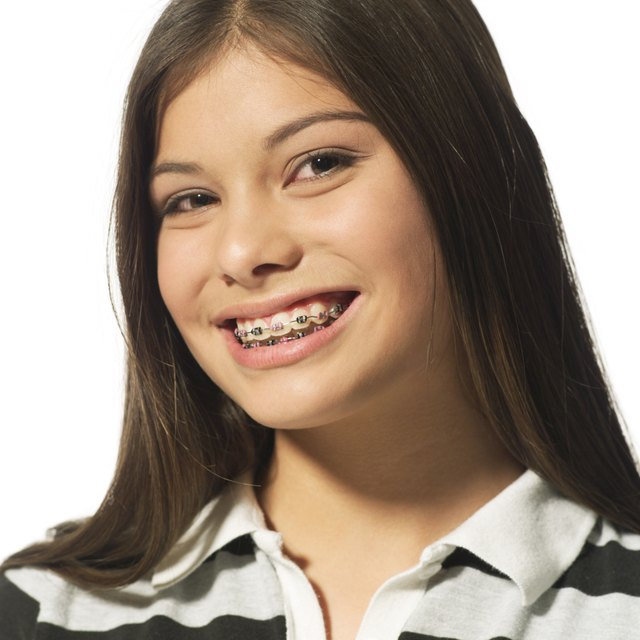 portrait of an ethnic female teenager with braces as she flashes a big grin