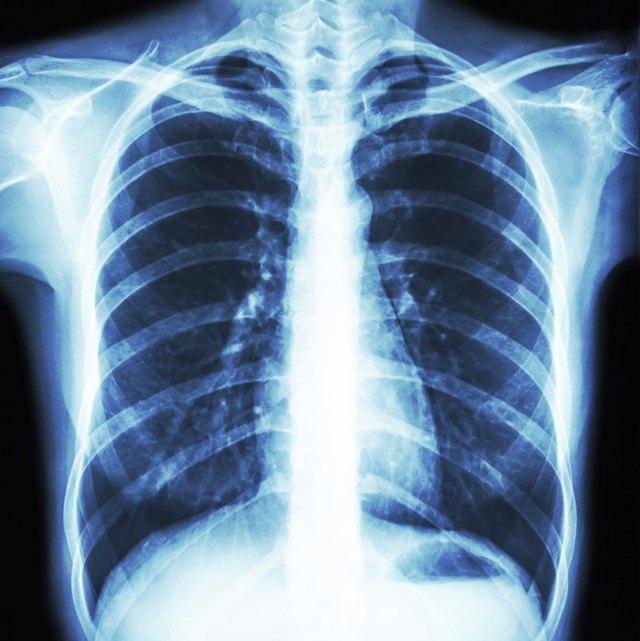 Lungs & Calcium