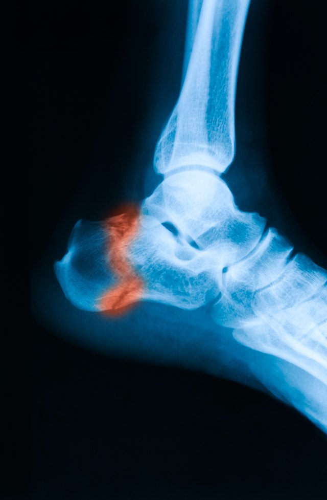 X-ray image of ankle, lateral view.
