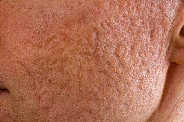 Acne scars on cheek