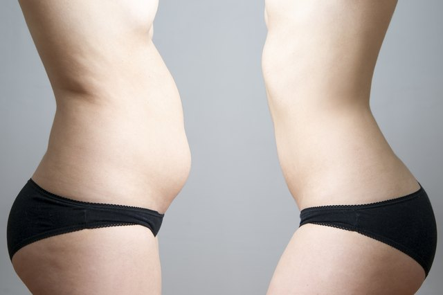 Obesity before after